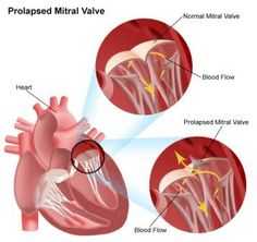 Mitral Valve Prolapse- Causes, Symptoms, Diagnosis, Treatment and Ongoing care