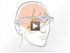Migraine prevention Cefaly headband