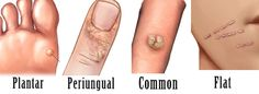 These are the most common types of warts. Anybody can have a problem with these. Take care of your skin as soon as you notice the wart.
