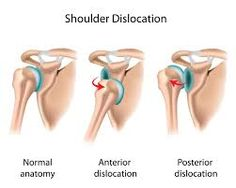Best Shoulder Labral Tear Repair Surgery Image Collection