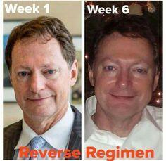 Reverse for Men #agebackwards