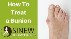 How to treat a bunion and speed recovery using herbal remedies the Chinese Warriors used to heal their battlefield injuries. https://www.youtube.com/watch?v=gakVL2ej4R0 #bunion #bunionpain #buniontreatment #bunionrelief #bunionpainrelief