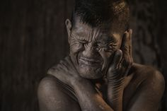 Old Down syndrome patients by Chaiyun Damkaew on 500px