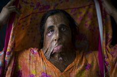 Des femmes pakistanaises marquées à vie