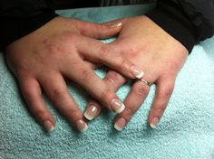 French Manicure Acryl