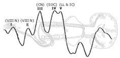 Acoustic Reflex Threshold (ART) Patterns: An