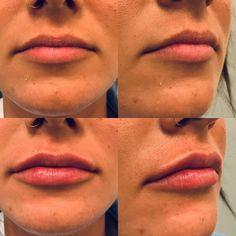 Lippenvergrößerung mit Hyaluronsäure Teoxane Lip Fillers, Lips, Lip Shapes, Fuller Lips, Liposuction, Thin Lips, Face, Upper Lip, Contouring