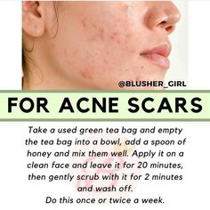 #BlusherMakeup Blusher Makeup, Beauty Hacks Nails, Green Tea Bags, Acne Scar Removal, Acne Breakout, Acne Spots, Remove Acne, Homemade Facials, Clean Face