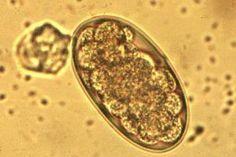 Principaux parasites internes du cheval dossier 1cheval.com Les Parasites, Student, Horse, Sheep