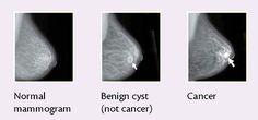 Câncer de mama - Recomendações para detectar a doença em estágio precoce.