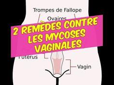 9 remèdes maisons contre la mycose vaginale | Bonheur et santé
