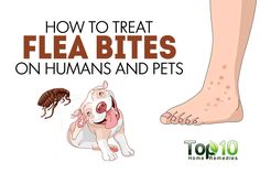 Fleas are tiny, irritating insects that mostly attack pets. But, if you have pets or live in an area where fleas are common, chances are high that you may also suffer from flea bites. Flea bites are itchy as well as painful. The bites may appear as small, red bumps, typically in groups of three …