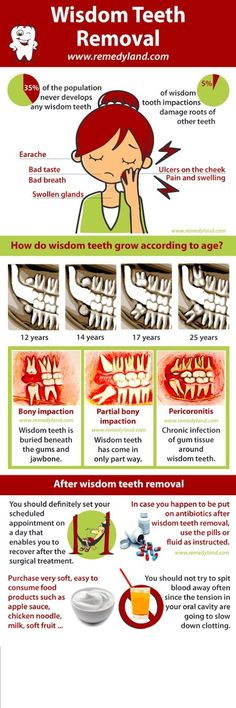 #ODC_fact Wisdom teeth and all that you need to know about it..