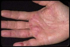 Cancer Symptoms First Appear On Your Hands - How to Spot Them? #cancer #symptoms #cancersymptoms #cancercure