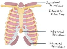 Respiratory Distress Assessment: Retractions [Note:  Also assess + Use Neck Muscles, + See Saw abdominal muscles, + nasal flaring ]