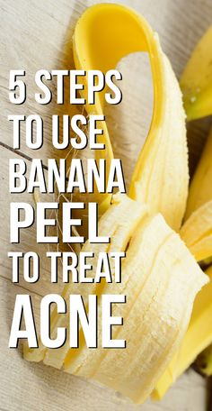 7 Simple Ways To Use Banana Peel To Treat Acne Did you ever get irritated with acne? Tried numerous medicines & ointments, but ended up disappointed. But, ever thought of using banana peel for acne? If no read on! Cystic Acne Remedies, Natural Acne Remedies, Home Remedies For Acne, Skin Care Remedies, Anti Aging, Skin Care Routine For 20s, Best Acne Treatment, Scar Treatment, Recipes