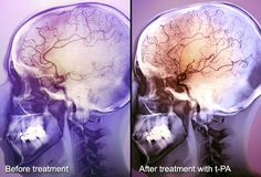For an ischemic stroke, emergency treatment focuses on medicine to restore blood flow. A clot-busting drug is highly effective at dissolving clots and minimizing long-term damage, but it must be as soon as possible, within three -- or much as 4.5 hours for some people -- of the initial stroke symptoms Hemorrhagic strokes are more difficult to manage. Treatment usually involves attempting to control high blood pressure, bleeding, and brain swelling.