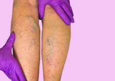 Vein treatment clinic is one of the best vein center, offers latest solution for varicose vein removal on legs. Find one of the top doctors near you for varicose veins treatment in Houston Texas. Varicose Vein Removal, Varicose Veins Treatment, Get Rid Of Spider Veins, 29 Weeks Pregnant, Spider Vein Treatment, Fitness Tips, Health Fitness, Salud Natural, Circulation Sanguine