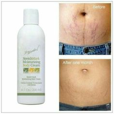 How To Get Rid of Stretch Marks Naturally and Fast! It Works Stretch Mark Cream and Body Wraps got rid of all my stretch marks its a miracle! Natural Skin Tightening, Skin Tightening Mask, Stretch Mark Cream, Stretch Marks, Crazy Wrap Thing, Best Natural Skin Care, Natural Health, Body Wraps, Cellulite