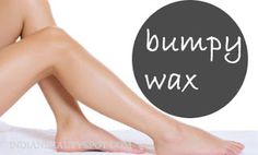 tips for rashes and bumps after wax