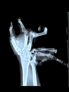 An x-ray of a youth's hand after a lit explosive went off before he could throw it away.