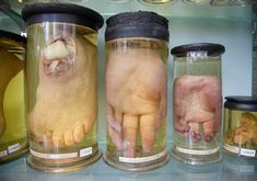 Murder is Everywhere: The World's Most Macabre Museum?