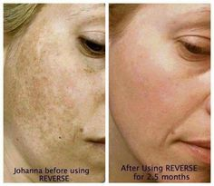 Reverse your sun damage for a more youthful looking complexion with Rodan + Fields! #cleantheslate