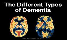 Learn more about the types of dementia, such as Alzheimer's disease, Lewy body dementia and vascular dementia.