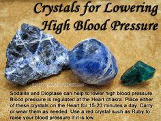 Kristalle für Bluthochdruck   - Sodalith und Dioptase können zu niedrigeren Bluthochdruck  helfen . Der Blutdruck  wird an der Herz -Chakra geregelt. Legen Sie eine dieser Kristalle auf das Herz-Chakra für 10-20 Minuten pro Tag. Sie können sie auch tragen oder tragen je nach Bedarf. Verwenden Sie einen roten Kristall wie Ruby auf Ihren Blutdruck  erhöhen , wenn sie niedrig ist.