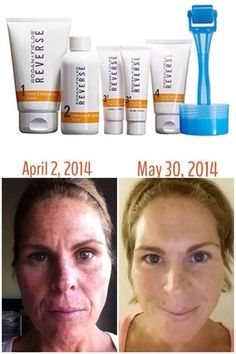 Amazing before and after using Rodan and Fields Reverse regimen! Contact: Ashley Stevenson ashleyrandf@yahoo.com 507-259-3844