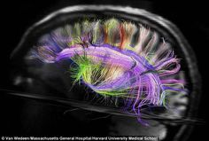 How our brains are wired: Scanner reveals inner workings in stunning new detail- Cool imagining!