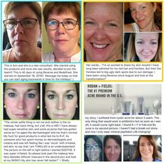 Real people, amazing results. Message me for product and to learn how help people get great skin.