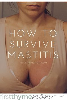 How to survive mastitis. What to do when you are breastfeeding and you come down with mastitis.
