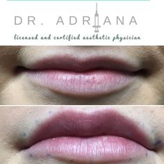 """This subtle lippy plump with lip filler injections. Our patient did not want those """"big, duck, crazy lips."""" We feel ya girl! We did less than 1ml of filler to accentuate the nice shape and definition she already had. Gorgeous and natural result."""