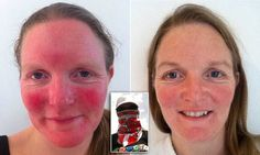 EXCLUSIVE: Carrie Smith, 38, from Glasgow, spent years unable to wear make up or skin products and wrapping herself up to protect herself from the sun, so desperate was she to prevent flare-ups.
