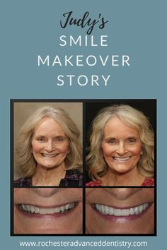 Judy's smile makeover was an added benefit to treating her debilitating headaches and TMJ pain. Finding the ideal position for your jaw and jaw muscles often results in reducing life long pain. before and afters, veneers, migraines,headache relief,tmj remedy,best dentist Dental Veneers, Smile Makeover, Best Dentist, Headache Relief, Dentists, Cosmetic Dentistry, Beautiful Smile, Self Esteem, Muscles