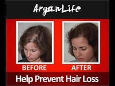 ARGANLife Hair Loss Treatment Before & After - http://hairregrowthnews.com/arganlife-hair-loss-treatment-before-after/