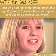Girl with a half brain gets a Master's degree - WTF fun facts