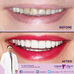 """This is the before & after photo of Ms. Kawther's Emax Veneers. """"I'm so grateful to the best cosmetic dentist, Dr. Haidar Alfayadh, for giving me this amazing smile"""" - Ms. Kawther  شكر موصول بالامتنان للفنان المبدع اختصاصي تجميل الأسنان د حيدر الفياض لمنحي ابتسامة اكثر من راءعة ..كوثر - Ms. Kawther  For more information and appointments please call us on 17131123 or 39795440."""