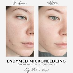 "Endymed microneedling gives permanent results, and the skin continues to improve up to a year after procedure, which means her skin will still continue to improve itself. She has noticed her pore size has shrunk in half, her acne has almost completely reduced, her skin feels smoother to the touch, looks more even and ""airbrushed"", and as an added bonus (something she didn't realized she needed) she says her skin looks tighter and more youthful. After age 20 we lose 2% of collagen each year. Age 20's, Clean Face, Airbrush, Collagen, Feels, Spa, Touch, Air Brush Machine"