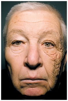 Unilateral Dermatoheliosis. This man was a truck driver for 25 years and only half of this face was exposed to UV light while driving.