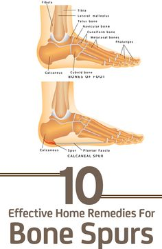 As our bodies grow old, our bones too tend to become weak that lead to the growth of bone spurs. Given here are the effective home remedies for bone spurs for you to check out. Heal Spur Remedies, Foot Remedies, Health Remedies, Natural Remedies, Holistic Remedies, Homeopathic Remedies, Natural Treatments, Ankle Pain, Heel Pain