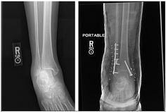 Ankle Stress Fracture Symptoms