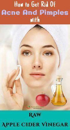 The best ways to Get rid of Warts Naturally #WartsOnHands #FastestWayToGetRidOfWarts #SkinWartsGrowth #SkinWartsHands #HowToGetRidOfWartsOnToes Warts On Hands, Warts On Face, Apple Cider Vinegar Remedies, Raw Apple Cider Vinegar, Skin Care Remedies, Acne Remedies, Natural Remedies, Herbal Remedies, Holistic Remedies