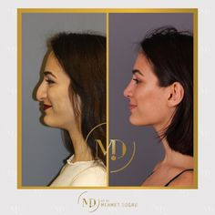 Nose Fillers, Facial Fillers, Perfect Nose, Nose Shapes, Nose Contouring, Nose Surgery, Celebrity Plastic Surgery, Change Is Good, Piercing