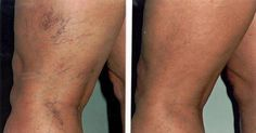 If your varicose veins and spider leg veins are causing you discomfort, you may need to consult for the laser treatment in Chicago. Simple laser treatment, sclerotherapy & many more… Varicose Vein Remedy, Varicose Veins Treatment, Varicose Vein Removal, Spider Vein Treatment, Nail Treatment, Blood Vessels, Fibromyalgia, Hair Loss, Home Remedies
