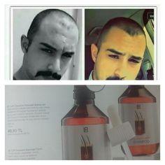 Lr classics concept 2 ay kullanimda alinan sonuç # erkek# saç # kuafor#kadin# sağlik