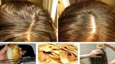 Ajaib, Rambut Beruban Jadi Hitam dalam Hitungan Menit Hanya dengan Kulit Kentang - World Study