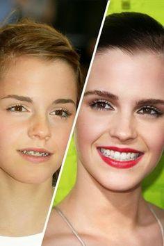79 Best Blog Images Dental Caps Braces For Teeth Cavities