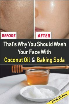 Baking Soda and Coconut Oil Face Mask #CoconutOilFaceMasks Coconut Oil For Face, Coconut Oil Weight Loss, Beauty Tips For Hair, Beauty Tricks, Natural Exfoliant, Good Skin Tips, Skin Care Tips, Acne Prone Skin, Organic Skin Care